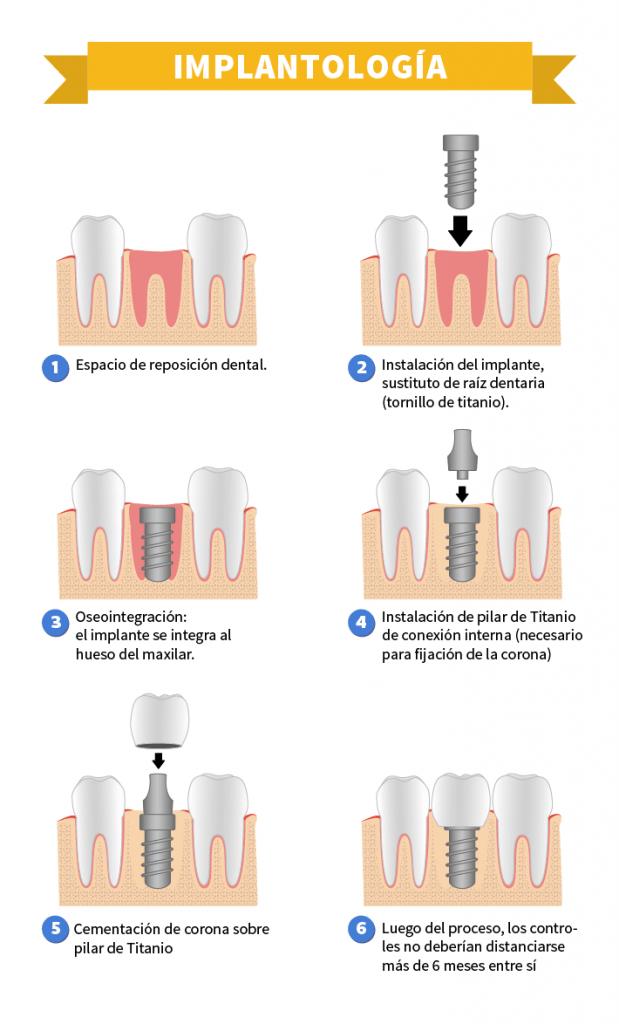 Infografía_Implantología