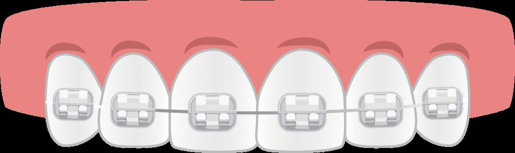 Brackets Porcelana - Ortodoncia