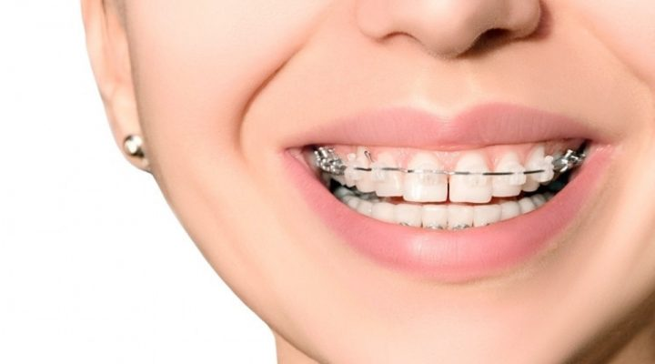 cómo limpiar los dientes con frenillos