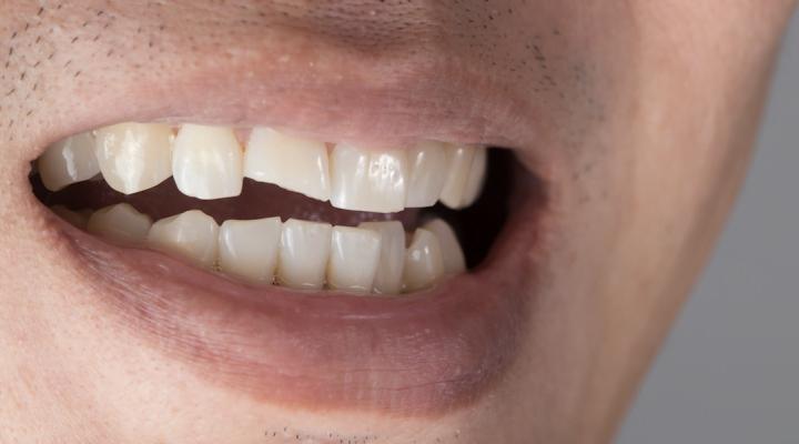 ¿A qué se debe la malposición dentaria?