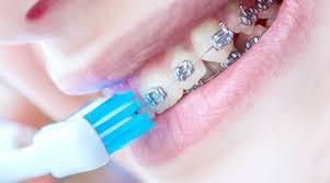 Cepillos-de-ortodoncia