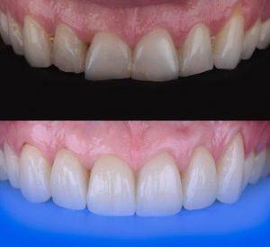 cemento-en-rehabilitacioon-oral