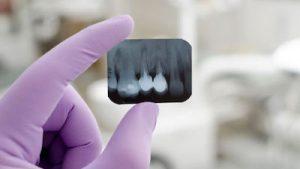 radiografia-dental-1