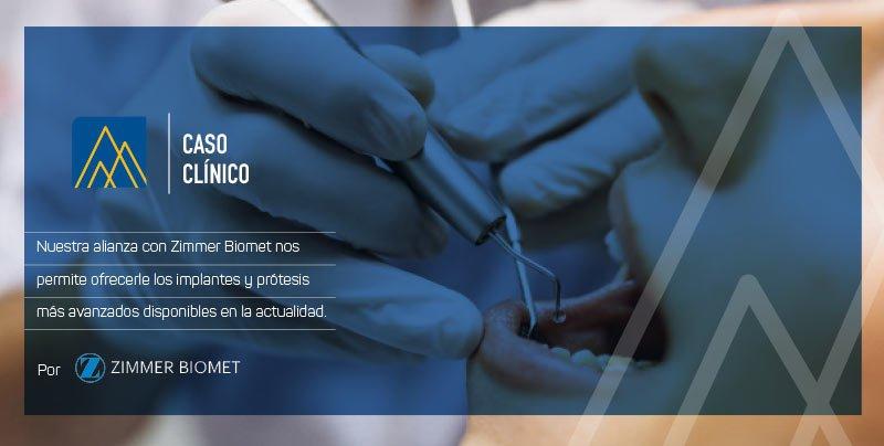 Caso clínico incisivo lateral maxilar