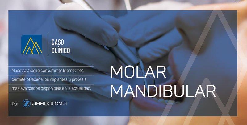Caso Clínico Molar Mandibular