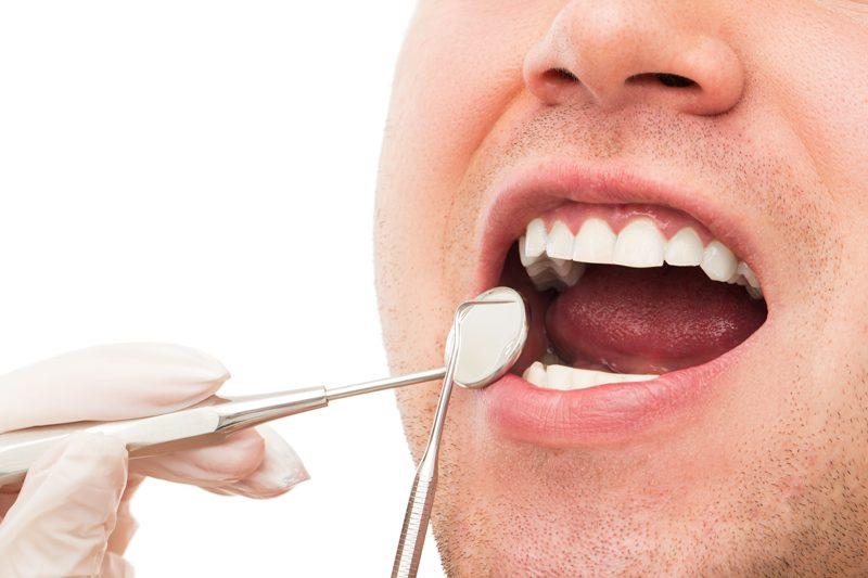 Lesiones en la lengua