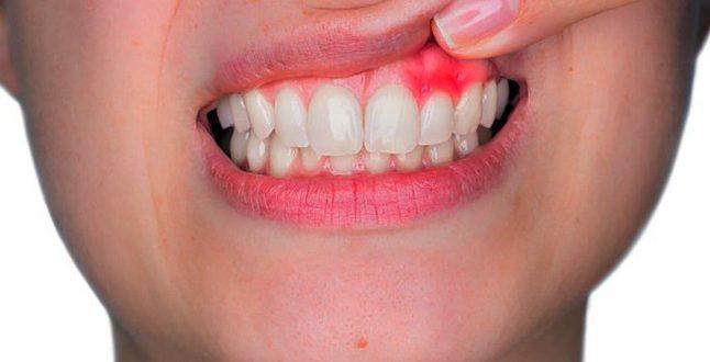 ¿Por qué me sangran las encías y cómo lo detengo?