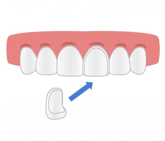 Carilla dental